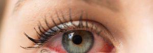 Nota de alerta da SBP correlaciona os olhos e a COVID-19